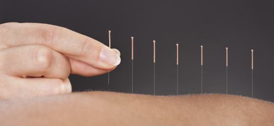 intro-acupuncture